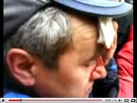Човек с ранена глава